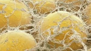 adipocyte 2