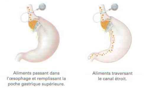 anneau gastrique ajustable