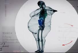 composition corporelle, avoir de gros os, nutrition obésité emnoline