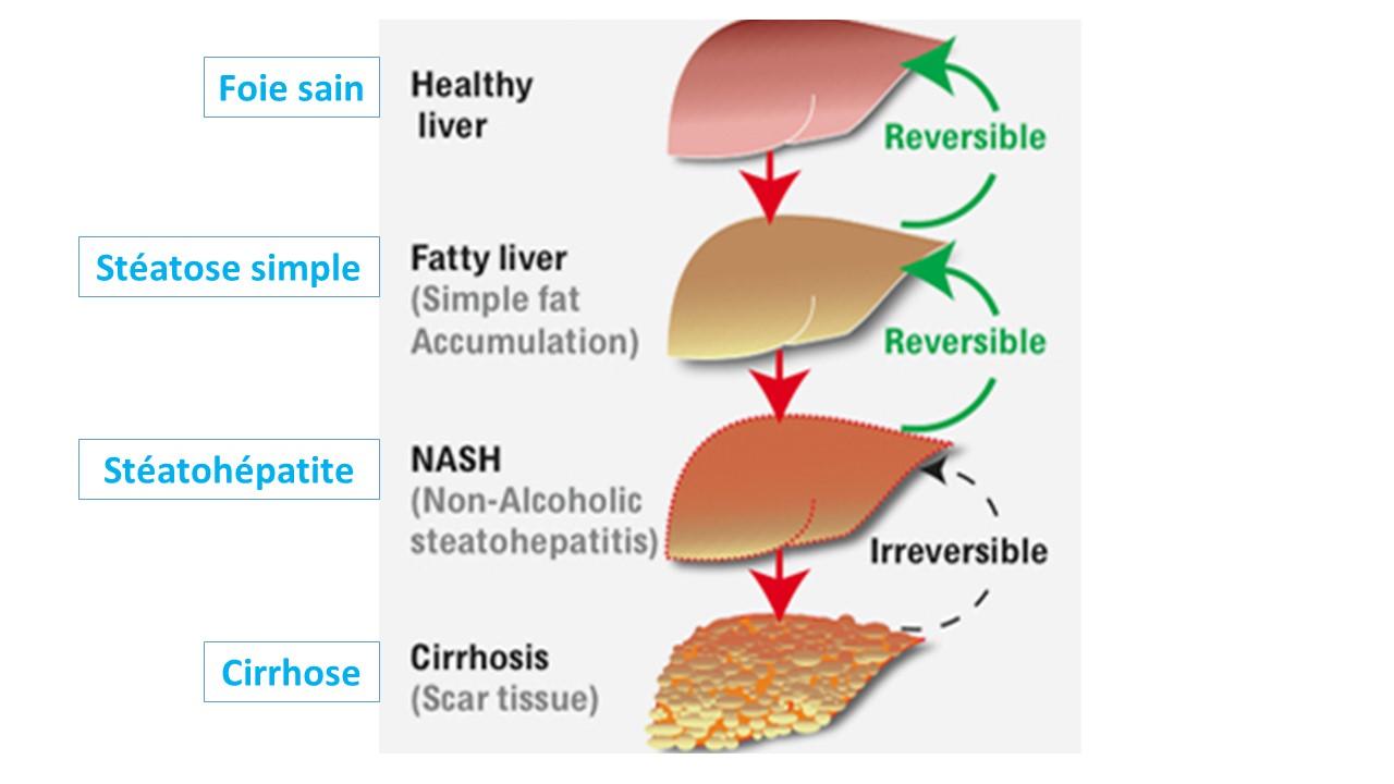 maladie de nash